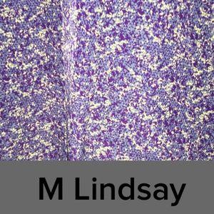 MEDIUM LULAROE LINDSAY